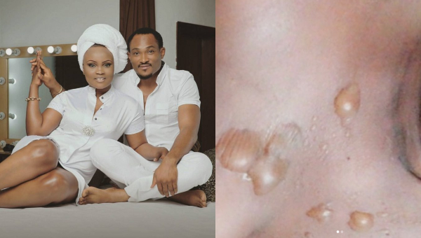 Blossom Chukwujekwu's wife,took to Instagram to share a near-death experience she went through last week.