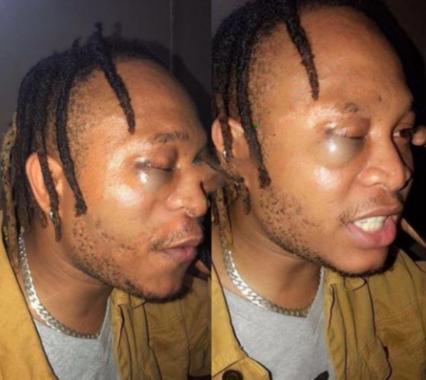 Former YBNL Singer, Viktoh Beaten By Police